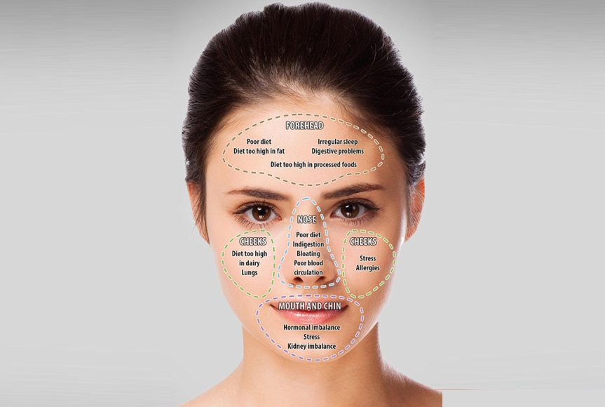 Face Map Your Acne: What Does Your Acne ReallyMean?