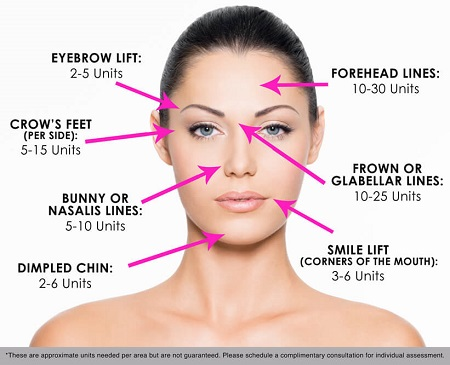 botox-face-diagram