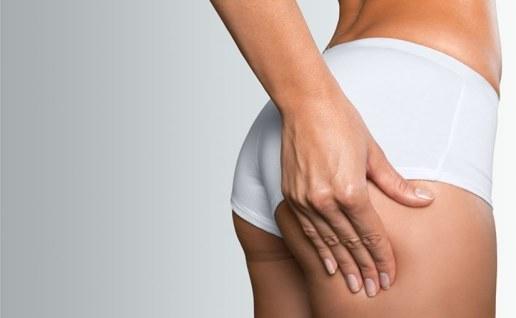 ONDA cellulite reduction