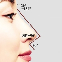Lunchtime 'Rhinoplasty' --- How Nose Threads Transformed My Looks